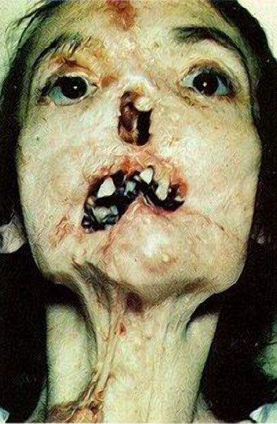 27302d1227489932-tertiary-syphilis-syphilis