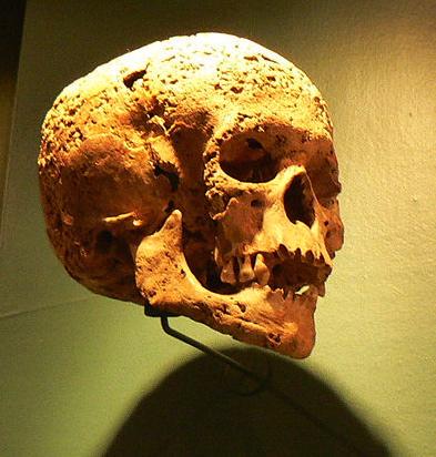 syphilis-skull