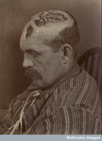 L0062302 Tertiary syphilitic ulceration of the scalp